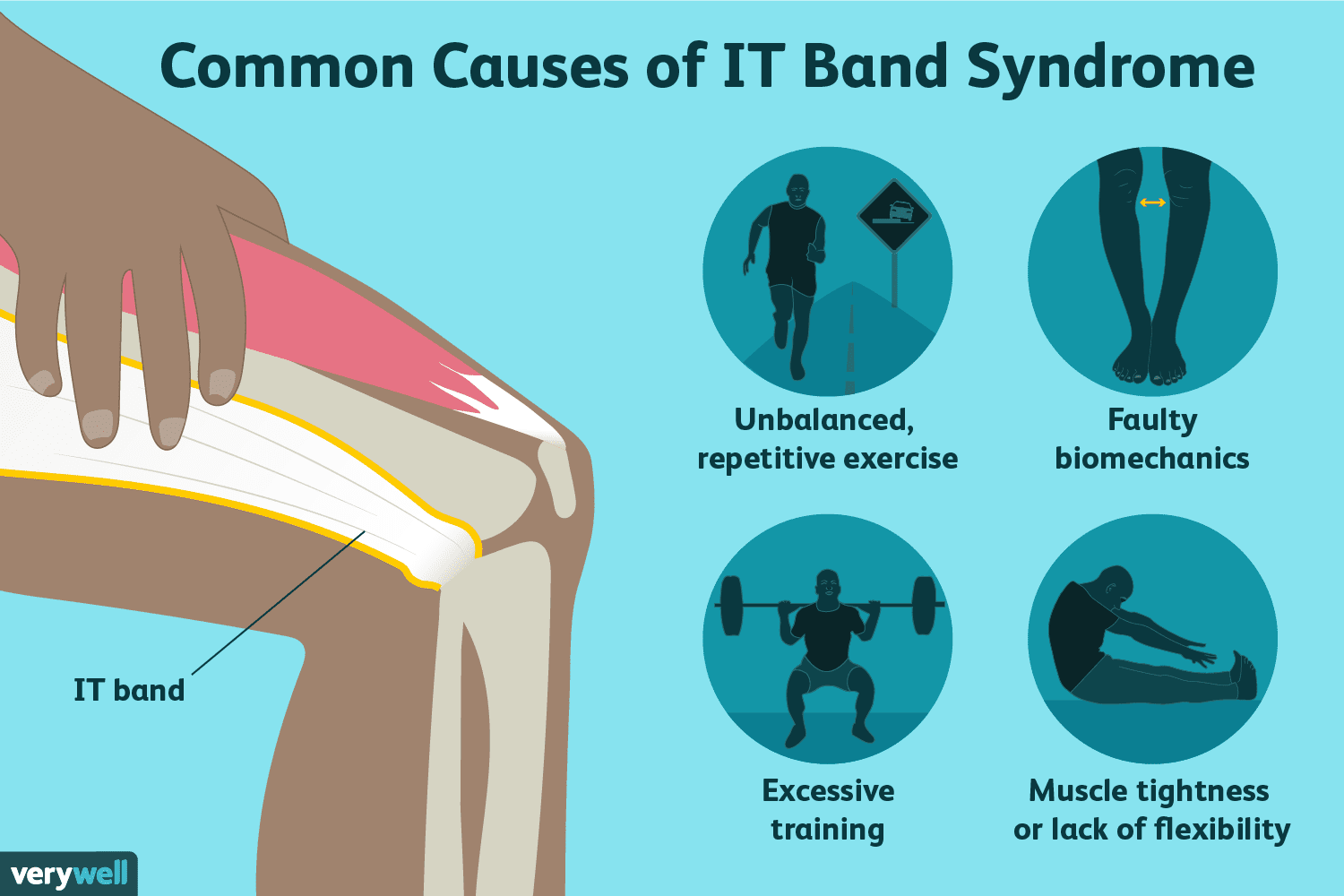 iliotibial band syndrome causes