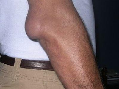 a jobb térd akut ízületi gyulladása ízületi fájdalom a protézisek után