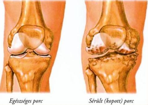 a térd hátuljában lévő szalagok fájnak térd osteoporosis és tünetek kezelése