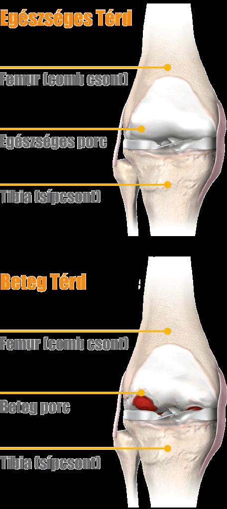 ízületek rheumatoid arthritis esetén csípő- és térdízületi fájdalom