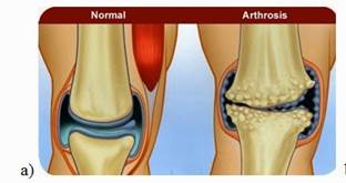 térdízületi fogpótlás kezelése ízületi fájdalmak esetén a takja segít
