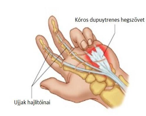 térd és csípő sérülések