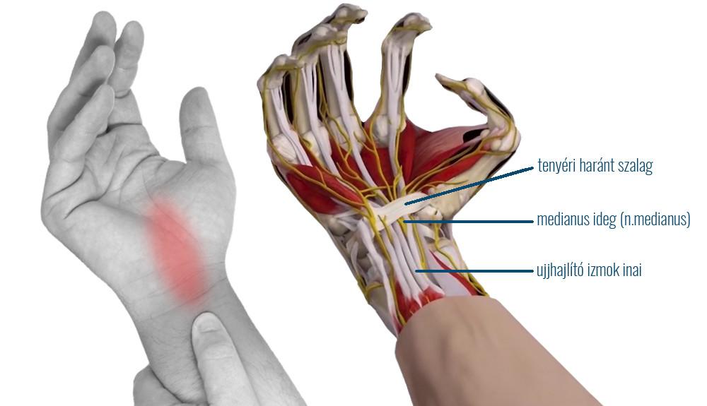 Alagút szindróma, kézfájdalom - Kiropraktika Központ, Budapest