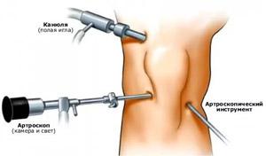 A térd hemarthrosisának teljes áttekintése: tünetek és kezelés