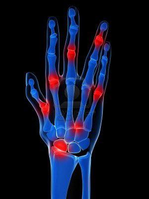 artrózis kezelésére használják csípőízület kezelési technika