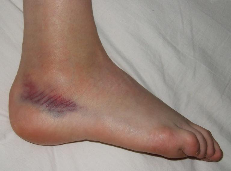 Ortózis lógó lábával - Ficam