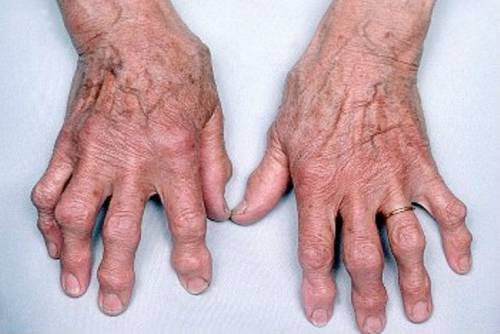 az ujjak deformáló artrózisának kezelése