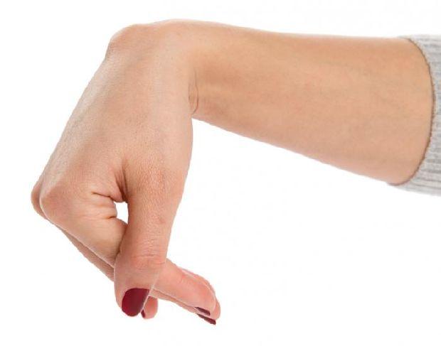 a csuklóízület és a kéz duzzanata