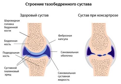 baloldali nyakfájás okai