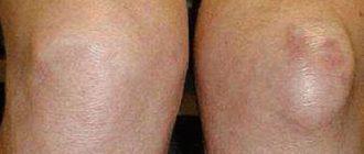 mi a térdízület artrózisa 3 fok