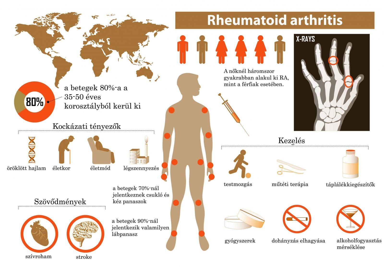 ízületi reuma kezelés tünetei a csuklóízület és a kéz duzzanata