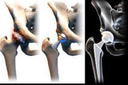 csípőízület coxarthrosis vagy arthrosis fájó kattanási ízületek