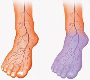 agyi értágítók osteochondrozishoz artrózis deformáló térdízület zselatin kezelés