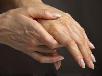 a lábujjak ízületeinek ízületi gyulladása a nordic walking térd artrózisával