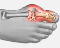 deformáló artrózis a nagy lábujj, hogyan kell kezelni térdízület keverés