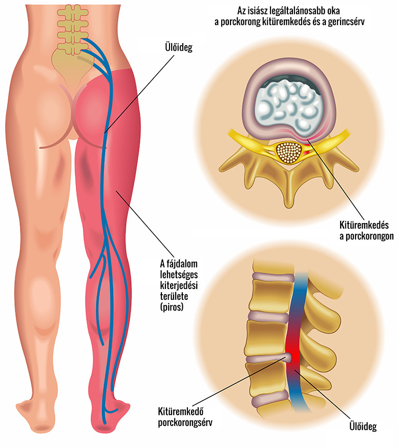tiszta balzsam ízületek a csípőízület kezelésének coxarthrosis jelei