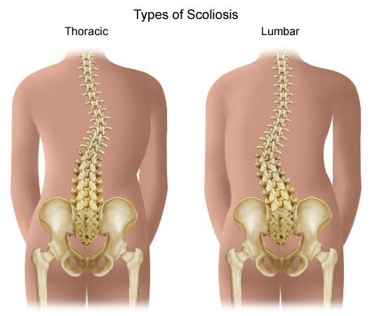 az ívek kezdeti artrózisa a vállízület inak betegségei