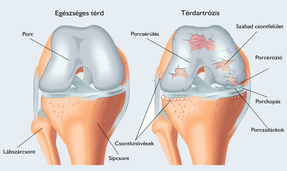 kórtörténet a jobb térdízület osteoarthrosis