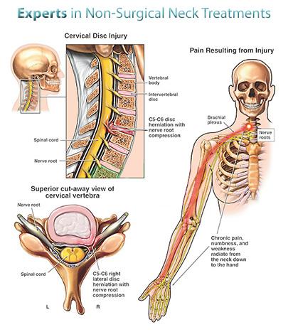 nyaki fájdalom kéz zsibbadás
