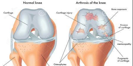 csukló artrózis másodlagos