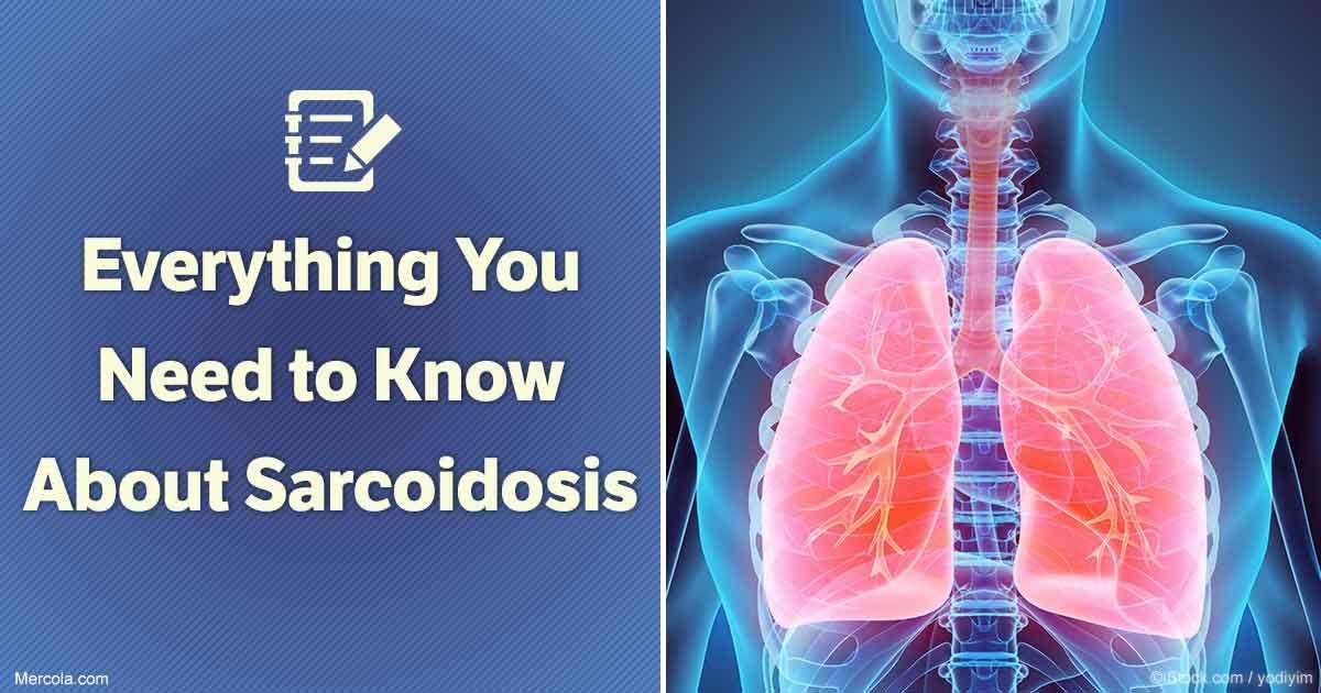 ízületi fájdalom és tüdő sarcoidosis fájhatnak-e a kéz ízületei csontritkulással