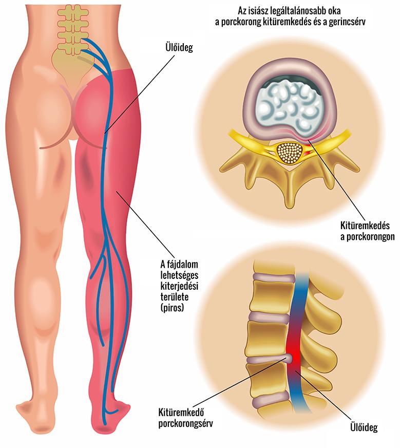 Az ízületek sebészeti kezelése ultrahanggal - Masszázs