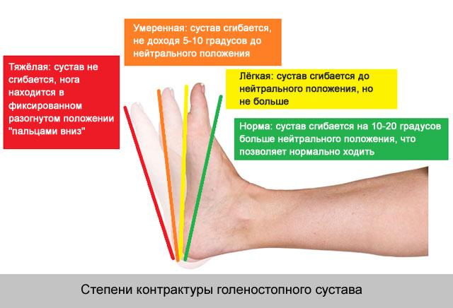 fájdalom a karok és a lábak kis ízületeiben