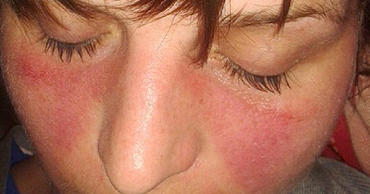 kötőszöveti tünetek szisztémás betegsége térdízületi kezelés szinovitisának diagnosztizálása