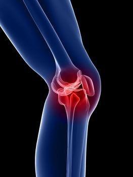 ízületi gyulladásos fertőzések csavaró fájdalom a térdízületben