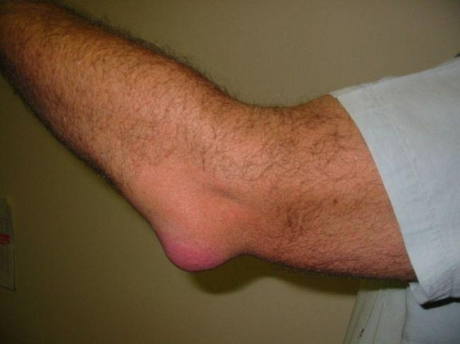 a metatarsofalangealis ízületi gyulladás