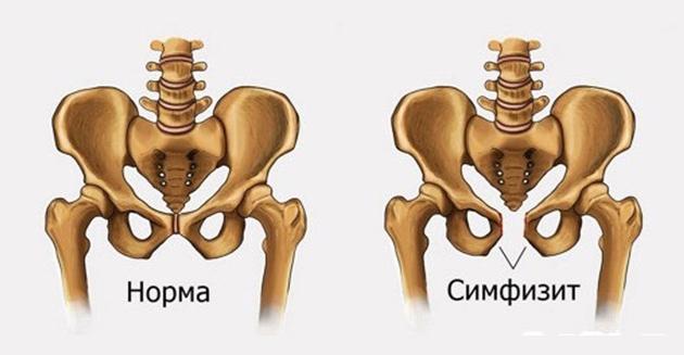 az ágyéki kenőcsék osteochondrozisának kezelése