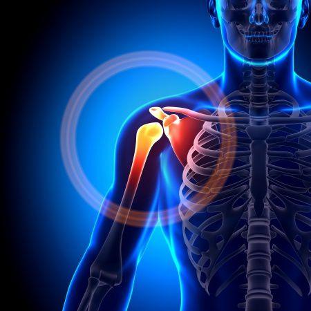 a váll krónikus osteoarthritisje