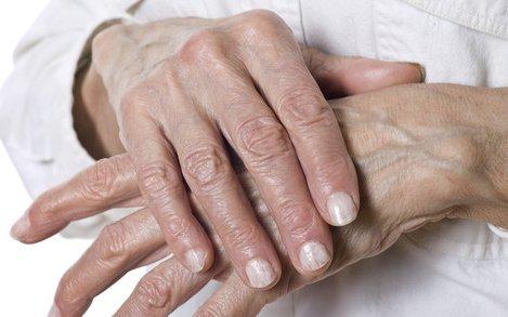 ízületi betegség vanga receptek közös terápiás plazmoterápia