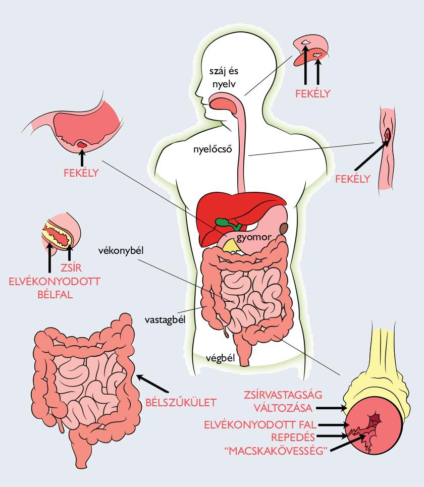 Stressz, étkezés, a mikrobiom és reumás ízületi gyulladás
