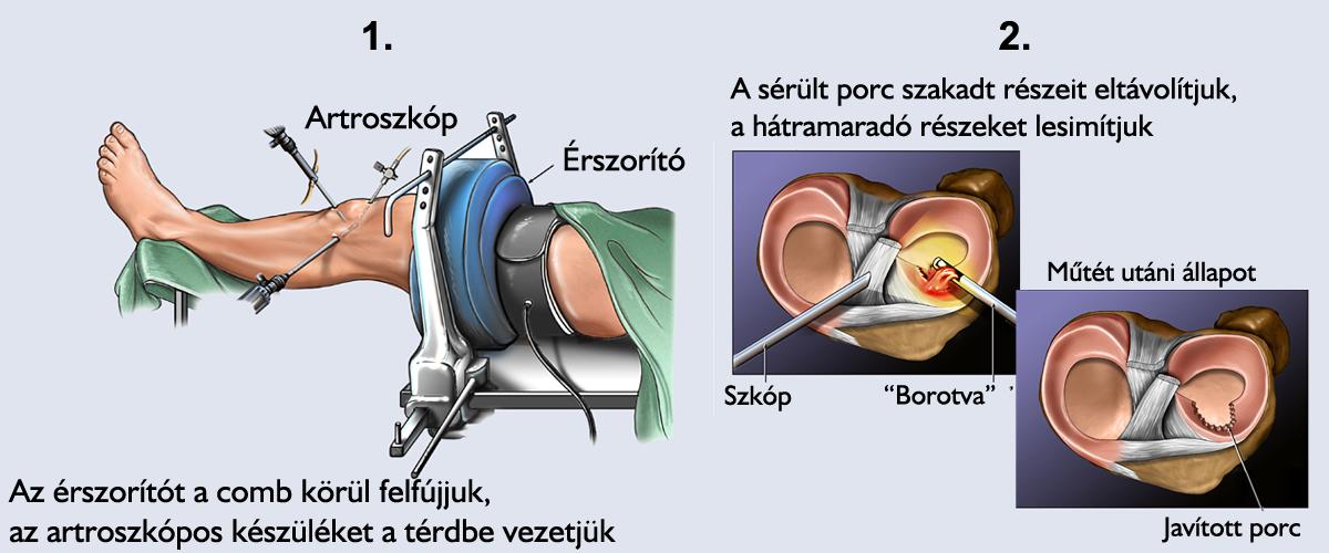 artrózis deformáció 2. stádiumú kezelés ízületek fájnak és viszkető kezek