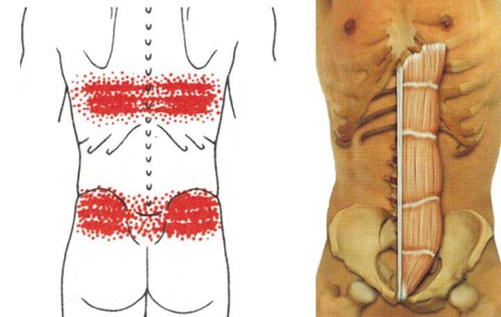 hogyan lehet csökkenteni a fájdalmat az ízület deformációja során