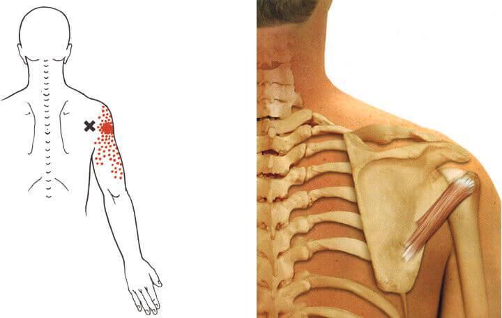 fájnak a vállízület kötőanyagai krónikus vállízületi gyulladás