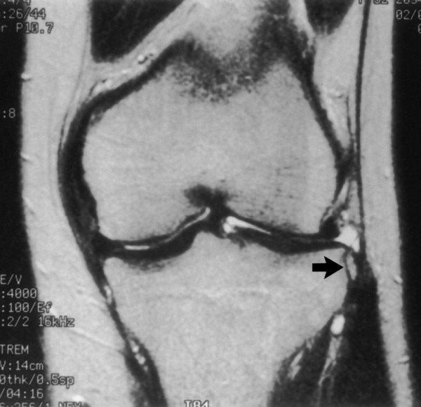 a térdízület kezelésének medialis ligamentuma részleges törése az interfalangális ízületek 2. fokú ízületi gyulladása