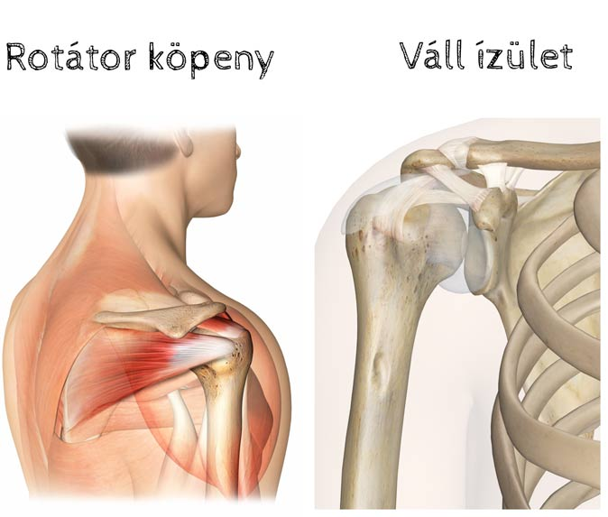 fáj a vállízületek, ne emelje fel a karját csípőízület coxarthrosis 3 fokkal, hogyan kell kezelni