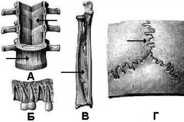 fájdalom a csípőízületekben skoliozussal guggol a csípőízület fájdalmához
