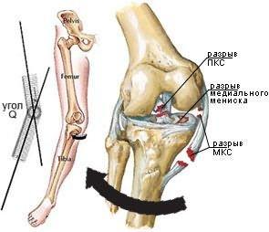 a térdízület ragasztásainak részleges törése a nyaki osteochondrozist kezelő gyógyszerek nyomása