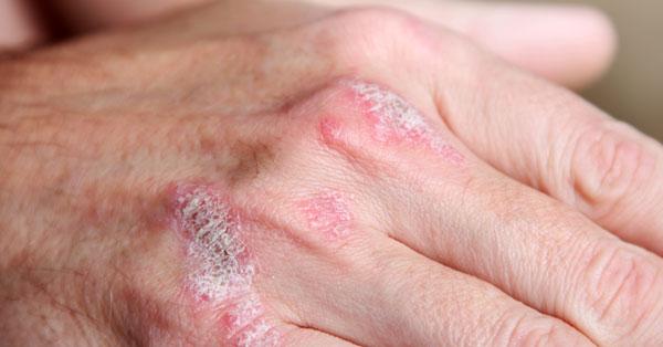 arthritis psoriatica betegség