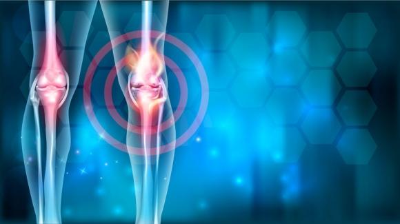 ízületek pszichológiai kezelése fájó nyakízület