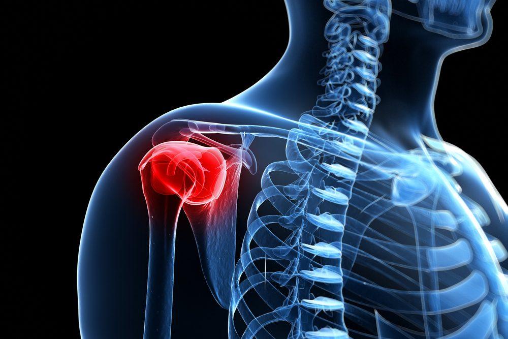 vállízület fájdalmai közös kezelés ciprus