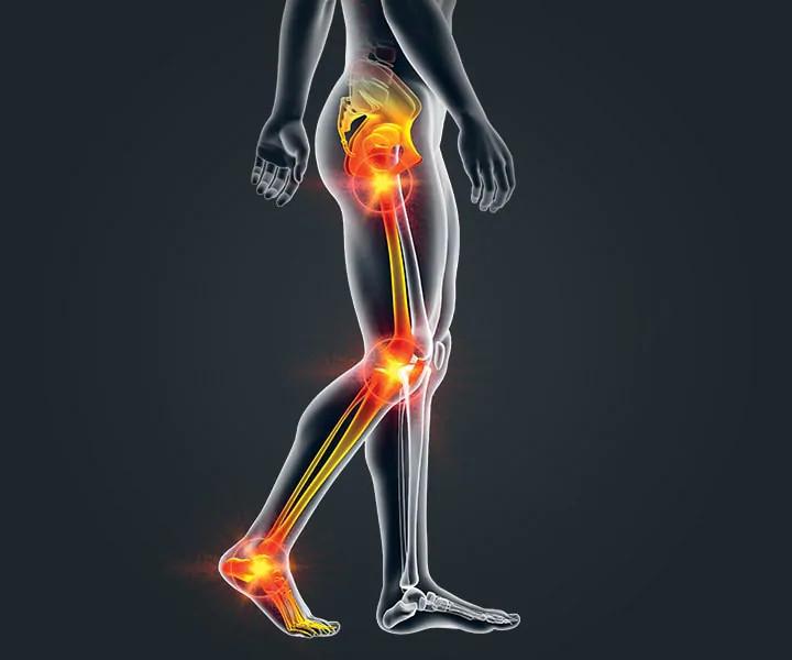 Boka osteoarthritis - smarthabits.hu