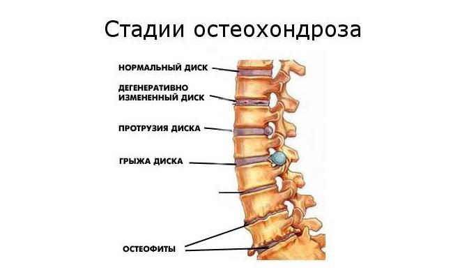 a csípőízület osteochondrozisának kezelésére szolgáló módszerek