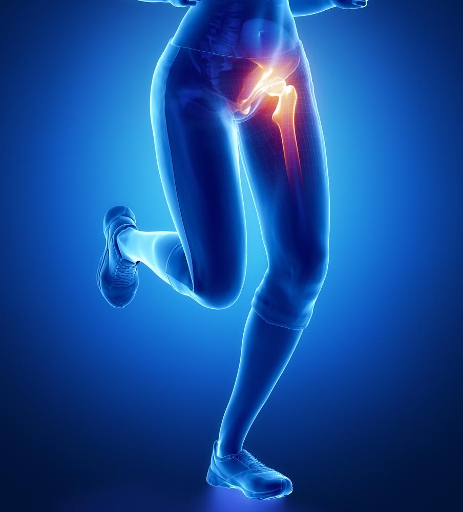 fájdalom a fenék és a láb csípőízületében az ízületek csontjainak gennyes betegségei