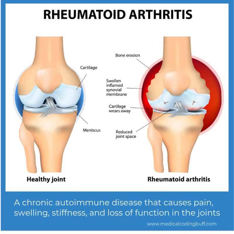 osteoarthritis knee icd 10 a lábujjak ízületei fájnak, a lábak megfagynak