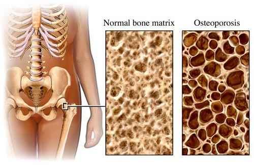 csontritkulás ízületi kezelés