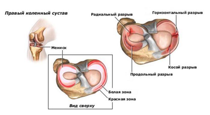 a bal térdízület mediális meniszkuszának krónikus károsodása